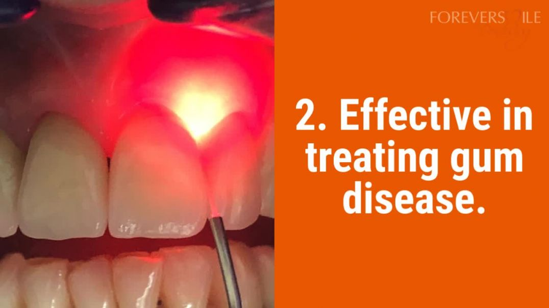 5 Benefits Of Laser Dentistry