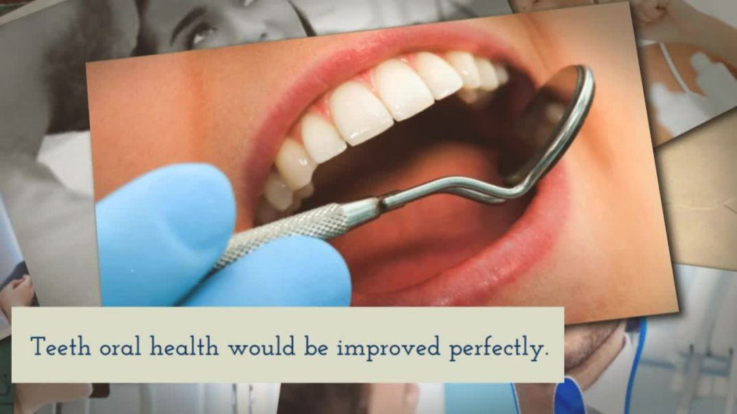 Improve the Appearance of the Mouth