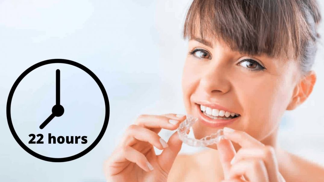 5 Things You Need to Know Before Starting Invisalign