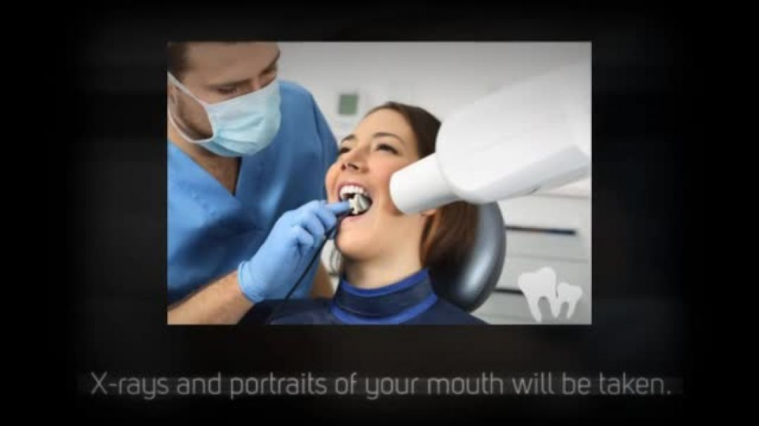 Step by Step Process of Invisalign Treatment