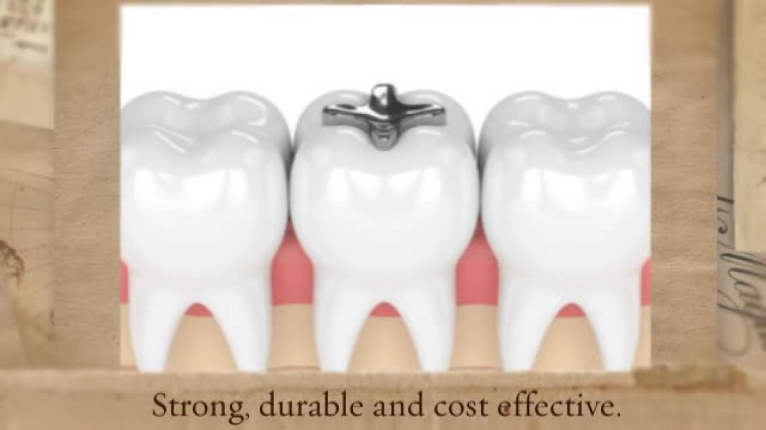 Advanced Method of Treatment in Dental Fillings